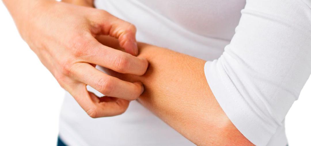 How to treat atopic eczema can hemp cosmetics help