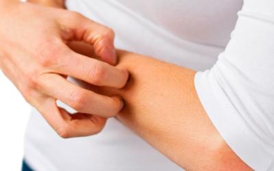 How to treat atopic eczema – can Annabis hemp cosmetics help?